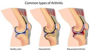 Stem Cell Therapy for Arthritis