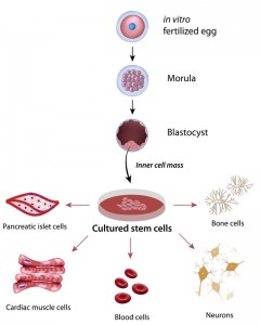 Stem Cells for cardiomyopathy