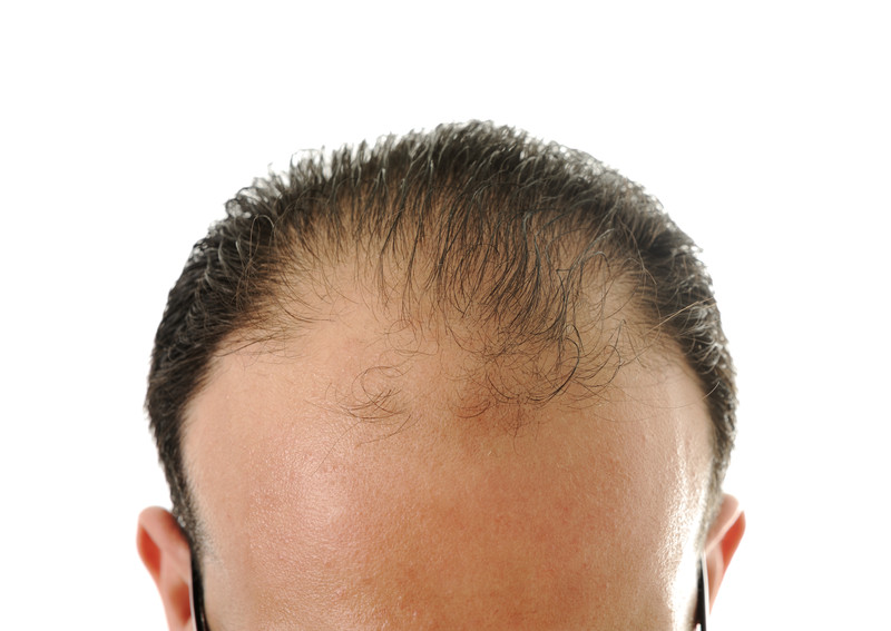 hair treatment for hair loss