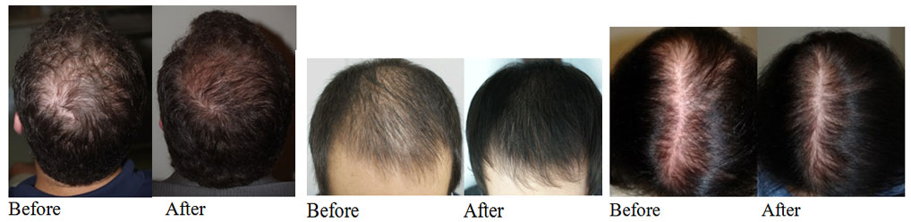 Stem Cells for hair loss