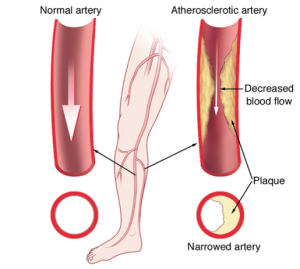 Stem Cells for Peripheral Arterial Disease