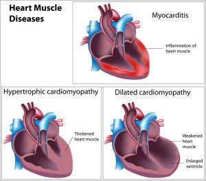 Stem cells for cardiomyopathy