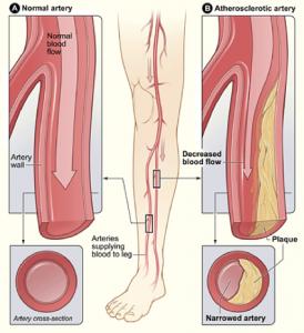 Stem Cells Peripheral Arterial Disease