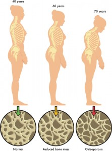 Stem Cell Therapy for Osteoporosis