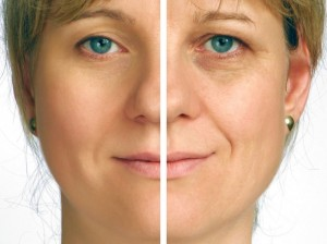 Stem Cell Facelift