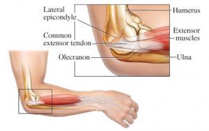 Stem Cells for Elbow Tendonitis