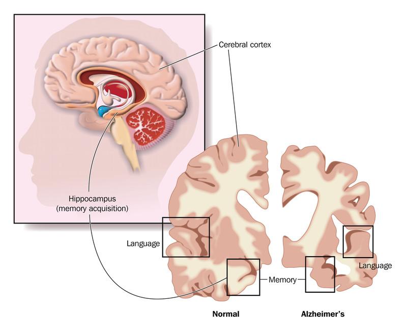 Stem Cells for Alzheimers
