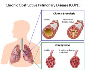 Stem Cell Treatment for COPD