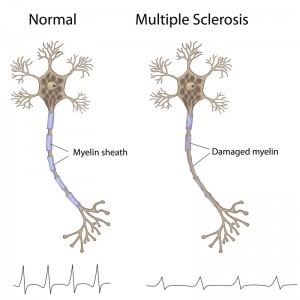 Stem Cell Treatment for MS