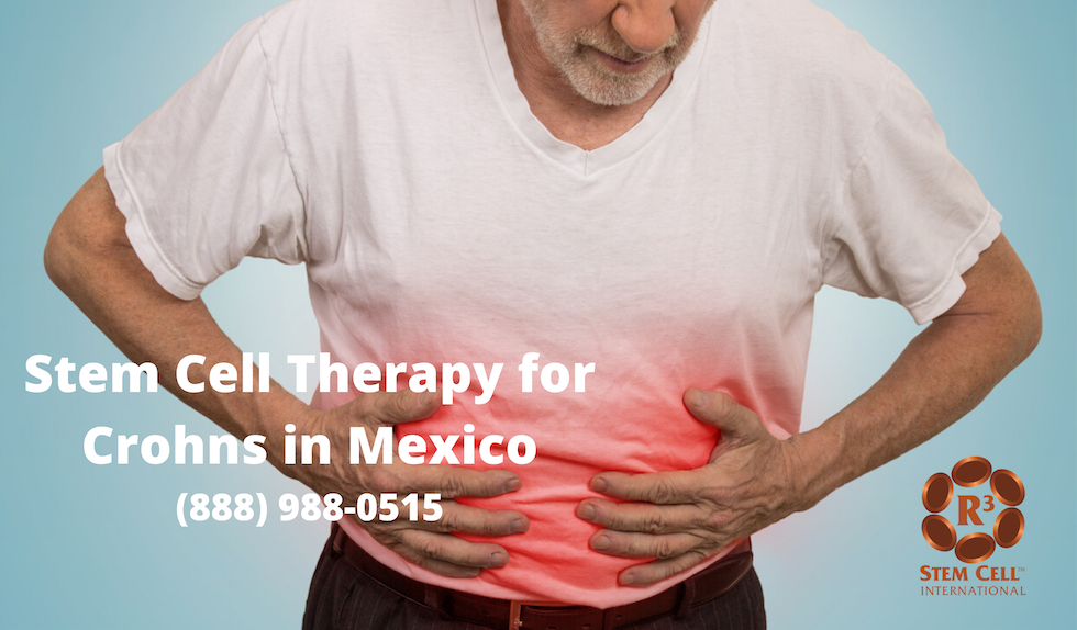 Stem Cell Therapy Crohns Mexico