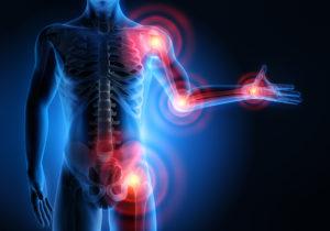 stem cell therapy rheumatoid arthritis Mexico